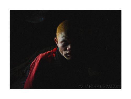 New_Albinos01